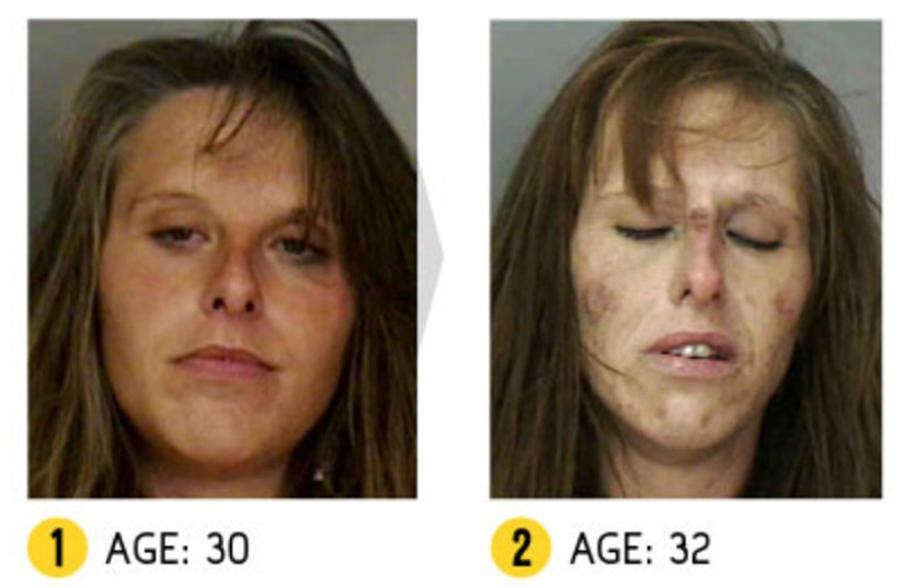 heroin before and after