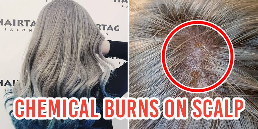Hairtag Salon Caused Chemical Burns On Girl S Scalp By Leaving