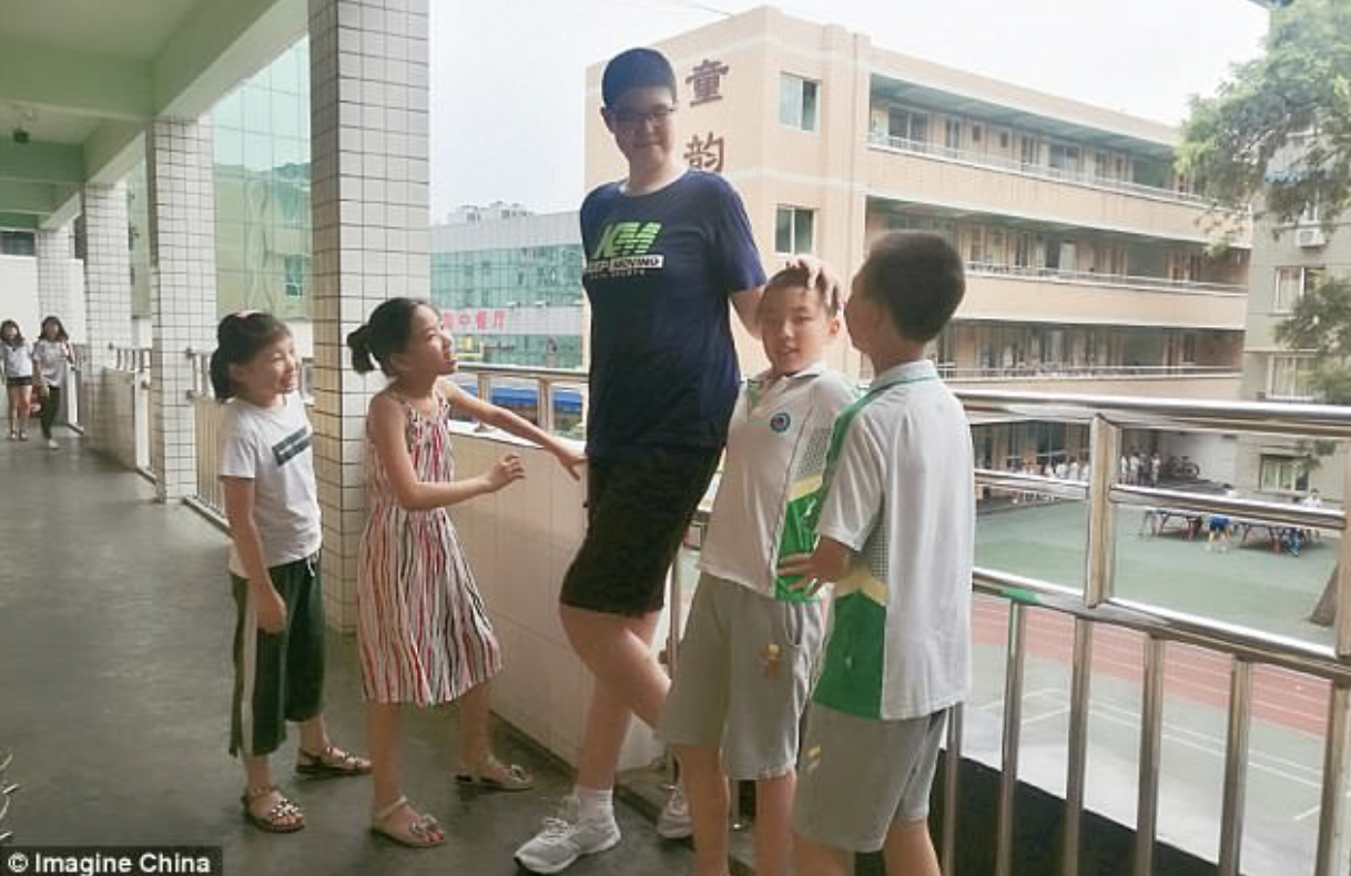 World's tallest teen